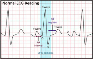 During An EKG A Health Care Technician Places Sensors On Your Chest Arms And Legs The Are Connected To Electrocardiogram Machine