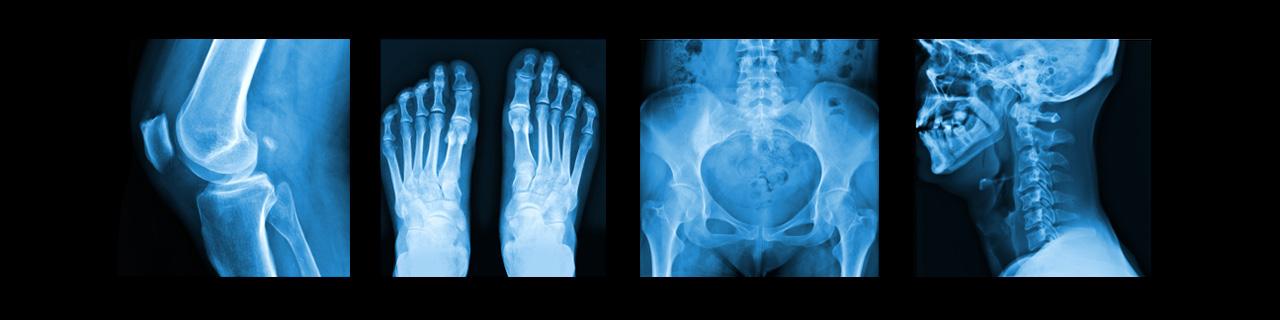 Series of x-rays