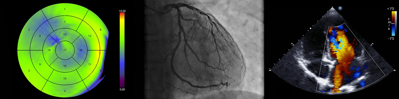 Heart imaging, angiogram, and doppler scan